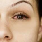 oci-crvene-iritacija-crvenilo-upala