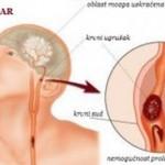 simptomi_moždanog_udara-300x156