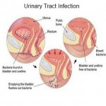 urinary-tract-infection1