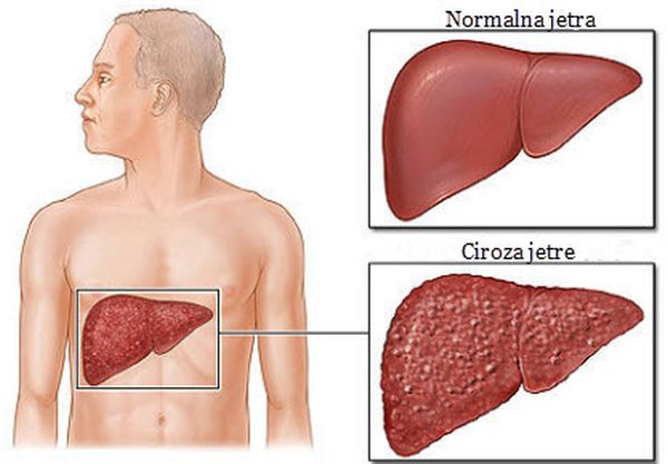 ciroza_jetre_simptomi