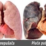tumorpluca