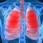 upala-pluća