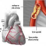 zakrčenje-arterija