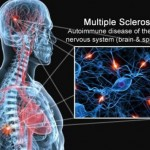 multipla_skleroza (1)