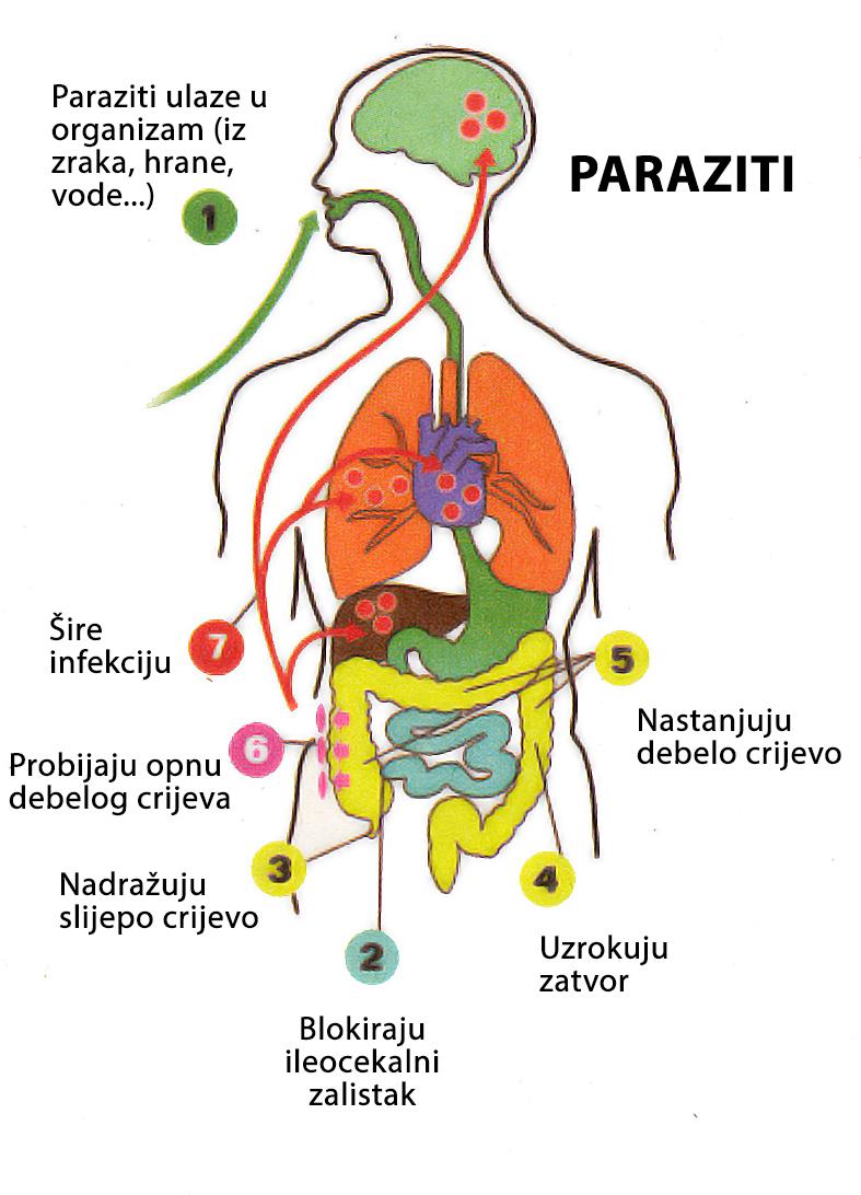 Paraziták és ljudskim crijevima