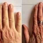 prsti-prstenjak