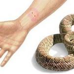 ugriz zmije
