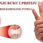 trnjenje_ruku_sindrom_karpalnog_kanala1