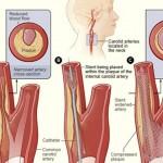krvne-žile-holesterol