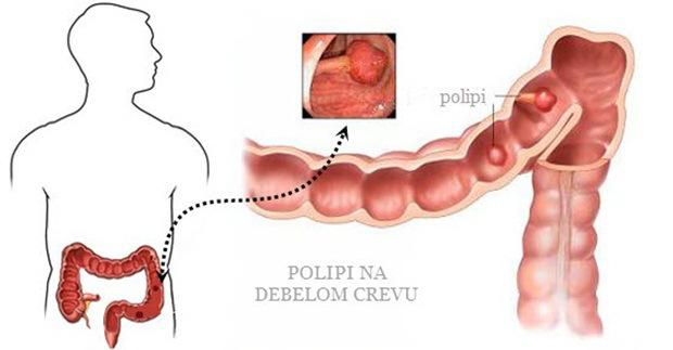 polipi_na_debelom_crevu_simptomi1