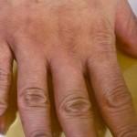 artritis-sirće