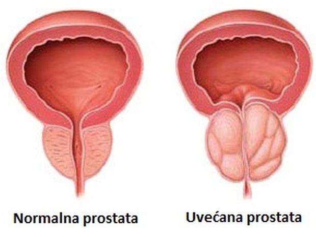 upala prostate i plodnost