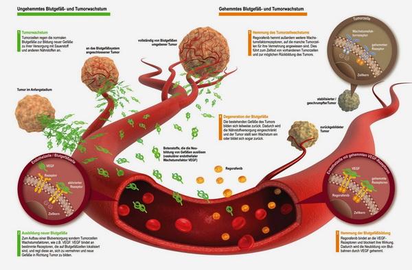 tumor-stanice