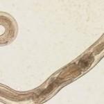 crijevni-parazit