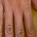 ruka-jabukovo sirće