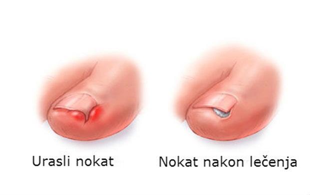 nokat-4