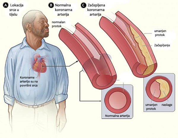 srce-krvne žile