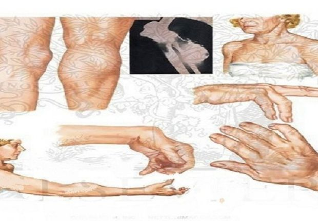 zglobovi