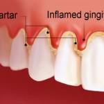 gingivitis-kamenac
