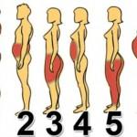 tip-gojaznost