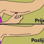 Riješite se mlitavih ruku u 7 lakih i brzih koraka (FOTO)