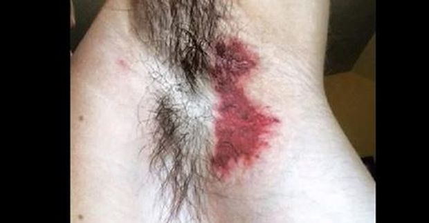 dezodorans-opekline