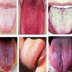 jezik-bolest