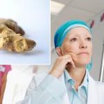 karcinom-djumbir