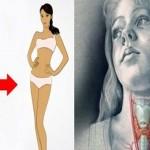 stitna-mrsavljenje