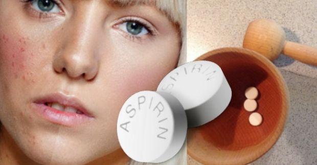 aspirin-lice