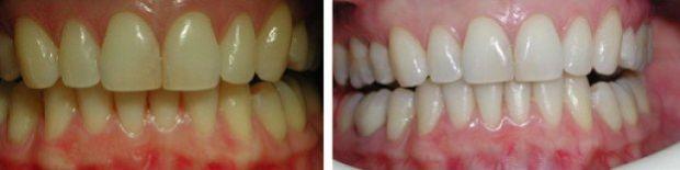 zubi-bijeli