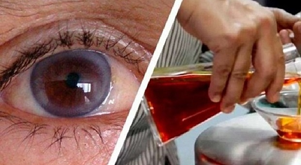 vid-oko