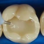 Popravka-zuba