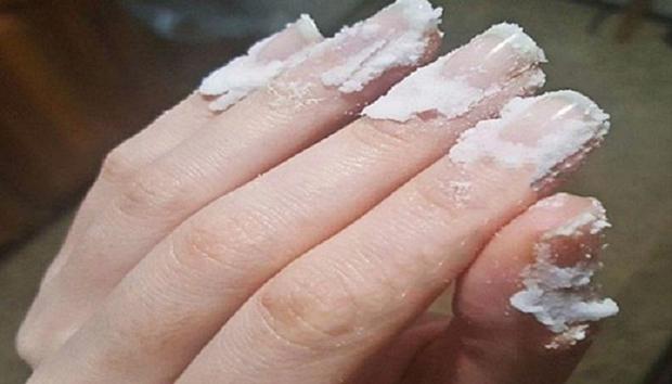 soda-bikarbona-nokti