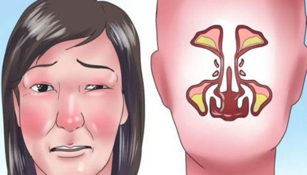 SINUSI-infekcija