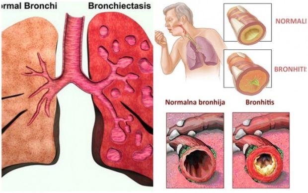 kasalj-bronhitis