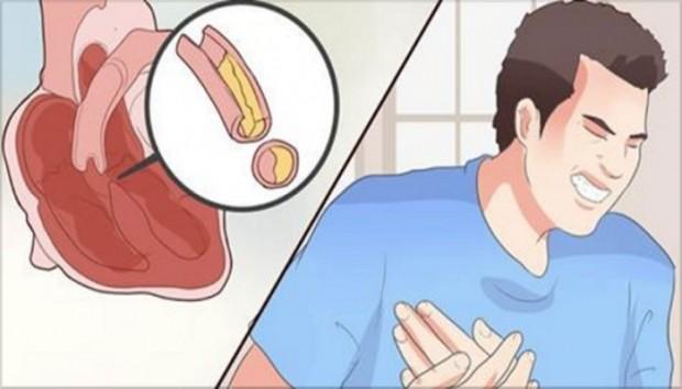 srce.krvni sudoci