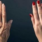 starenje-ruke