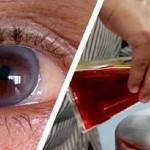 METODA KOJA JE ZALUDILA SVIJET: Vratite svoj vid za samo jedan dan i riješite se naočara zauvijek!