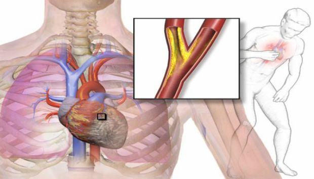 NEVJEROVATNO: Izliječite sve probleme sa srcem, čak i anginu pektoris! – Probajte ovo ODMAH!