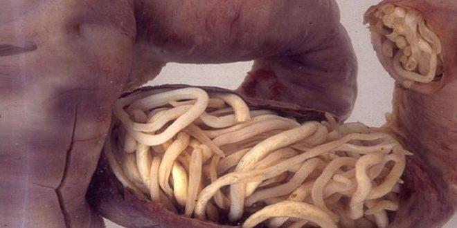 crijeva-paraziti