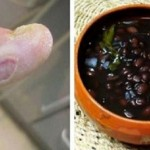 diabetes-anticki-recept