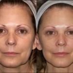 lice-zatezanje