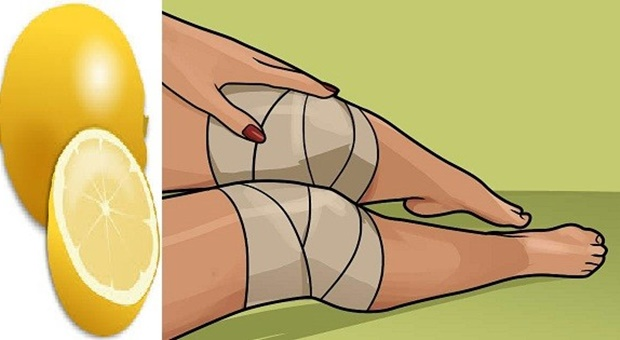 limun-koljena