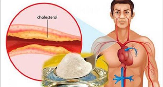 najbolji-lijek-holesterol