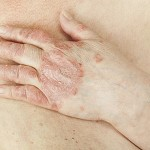 Psoriasis vulgaris is an disease that affects the skin