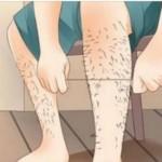 dlacice-depilacija
