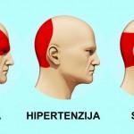 LIJEKOVI VAM VIŠE NI NE TREBAJU: Evo kako da PRIRODNIM putem izliječite SVE VRSTE glavobolja za manje od 5 minuta