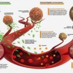 tumor-biljka