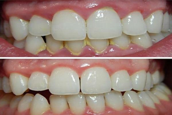 plak-na-zubima
